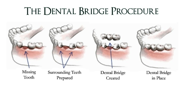 The Dental Bridge Procedure Nolensville